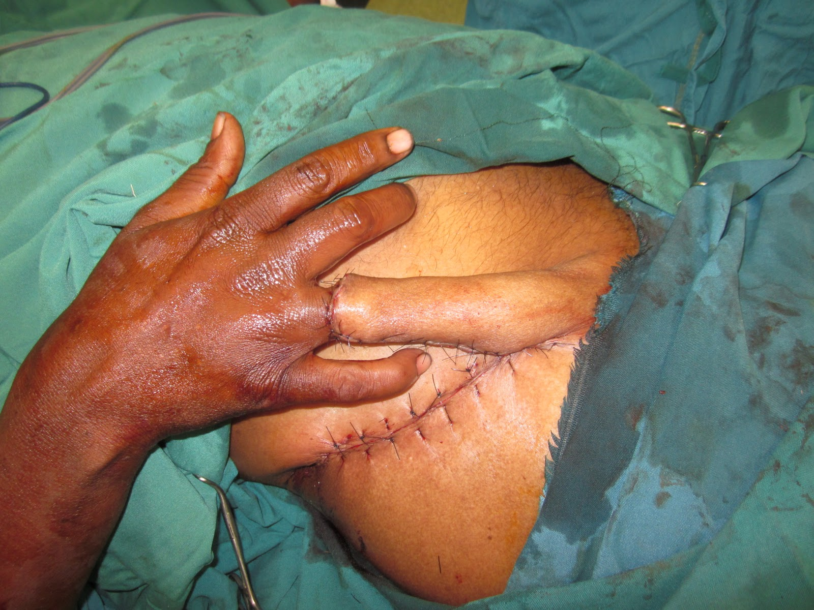 Ring avulsion injury right ring finger groin flap coverage hand