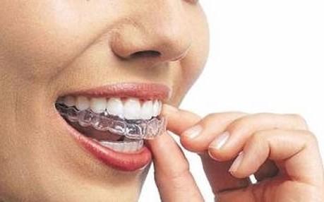 Dente Forte Consultorio Odontologico Clareamento Dental Seu