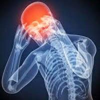obat sakit kepala tradisional (herbal)