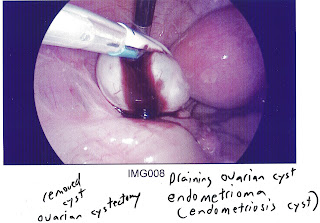 endometrioma (endometriosis cyst) viewed by laparoscope