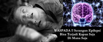 Pengobatan Tradisional Epilepsi