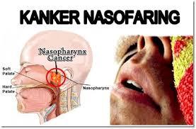 Cara Menyembuhkan Kanker Nesofaring