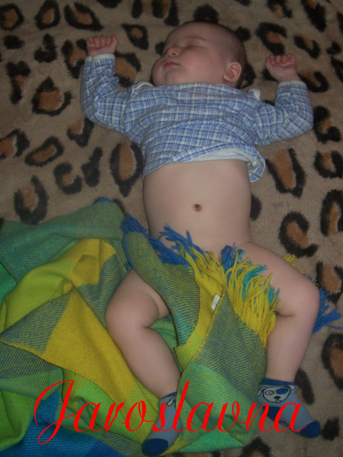 Фото здорового пупка ребенка
