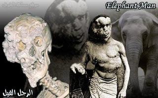 الرجل الفيل .. معاناة إنسان حوله المجتمع إلى مسخ مخيف!