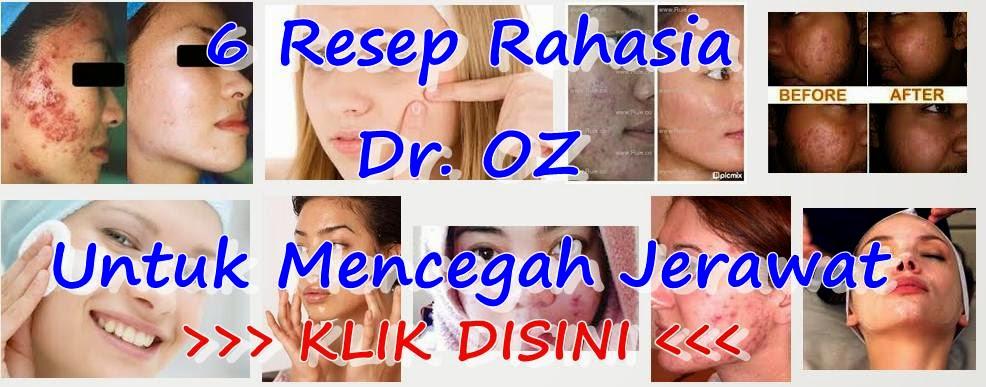 6 Resep Rahasia Dr. OZ Untuk Mencegah Jerawat