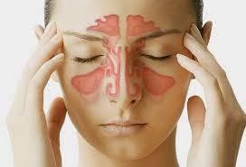 Penyakit Radang Sinus