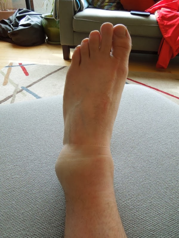 Badly sprained ankle