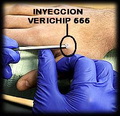 Cảnh báo: Chủng ngừa toàn cầu và cấy con chip vào cơ thể