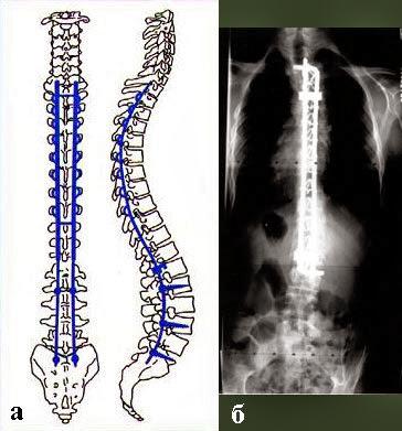 Tratamiento quirúrgico de la escoliosis (cirugía)
