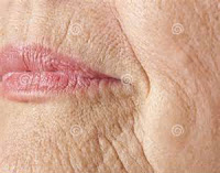 wrinkle around the mouth