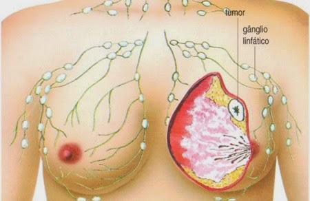 Mastectomia com reconstrução imediata