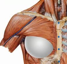 375 silicone implants