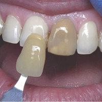 100% отбеливание зубов без вреда!