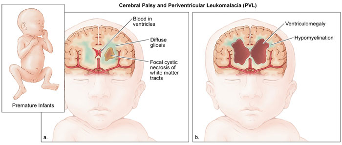 how to tell if baby has brain damage