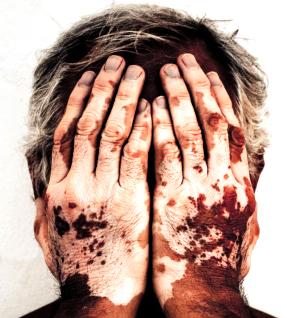obat herbal kekurangan pigmen atau vitiligo
