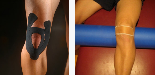 Running writings: Injury Series: Uncovering the role of ...