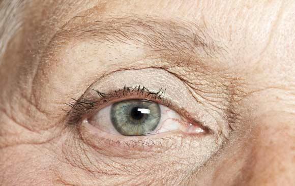 """Médicos experimentan con """"Células Madre"""" para curar ceguera macular"""