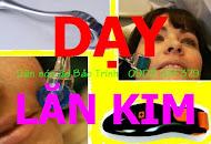 Day lan kim