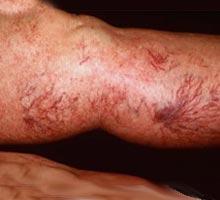 Que cura mejor varikoz