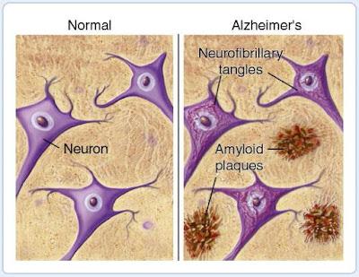 Cegah Alzheimer Dengan Perubahan Gaya Hidup