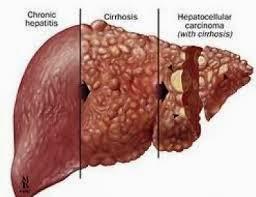 Gejala,Penyebab Penyakit Kanker Hati Dan Obat Herbal