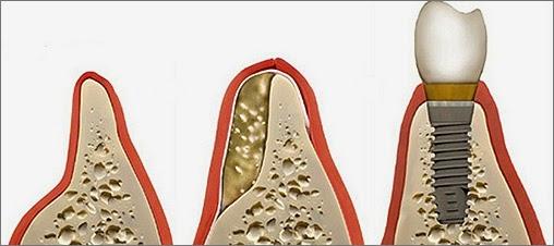 dental implant care at dentist in Bellevue