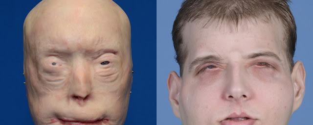 Médicos de Nueva York practican el trasplante de rostro más complejo hasta ahora