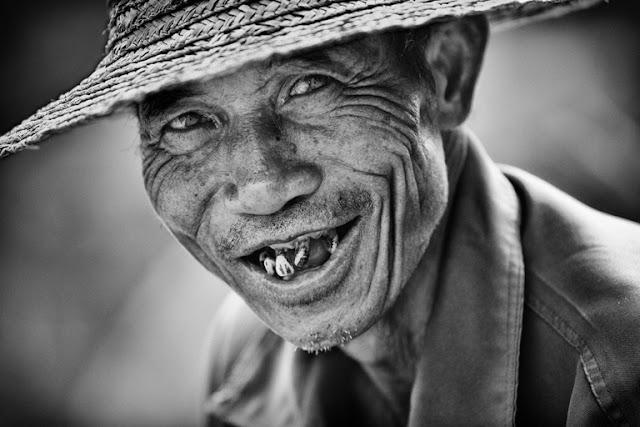 34 smile
