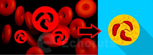 Basofil sel darah putih biologi - echotuts