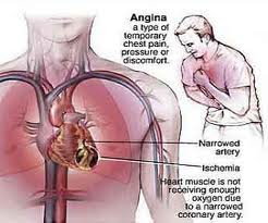 Decreased Cardiac Output - Nursing Care Plan for Angina Pectoris