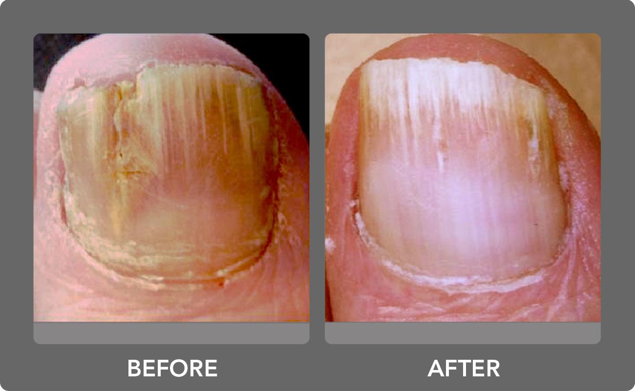 Laser Nail Fungus Removal: Laser Nail Fungus Cure San Diego