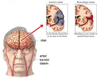 Obat Stroke Ampuh