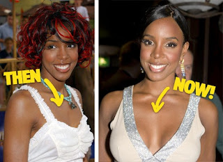 chatter busy kelly rowland plastic surgery photos