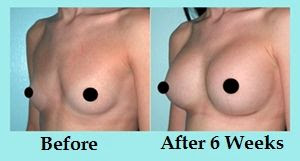 Increase Your Breast Size By 2 Cup Sizes