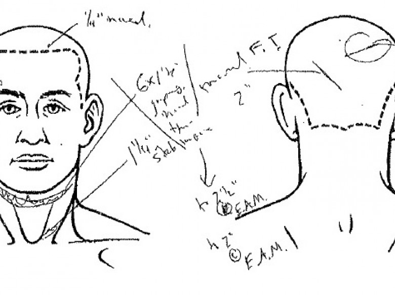 Travis Alexander Autopsy Diagram