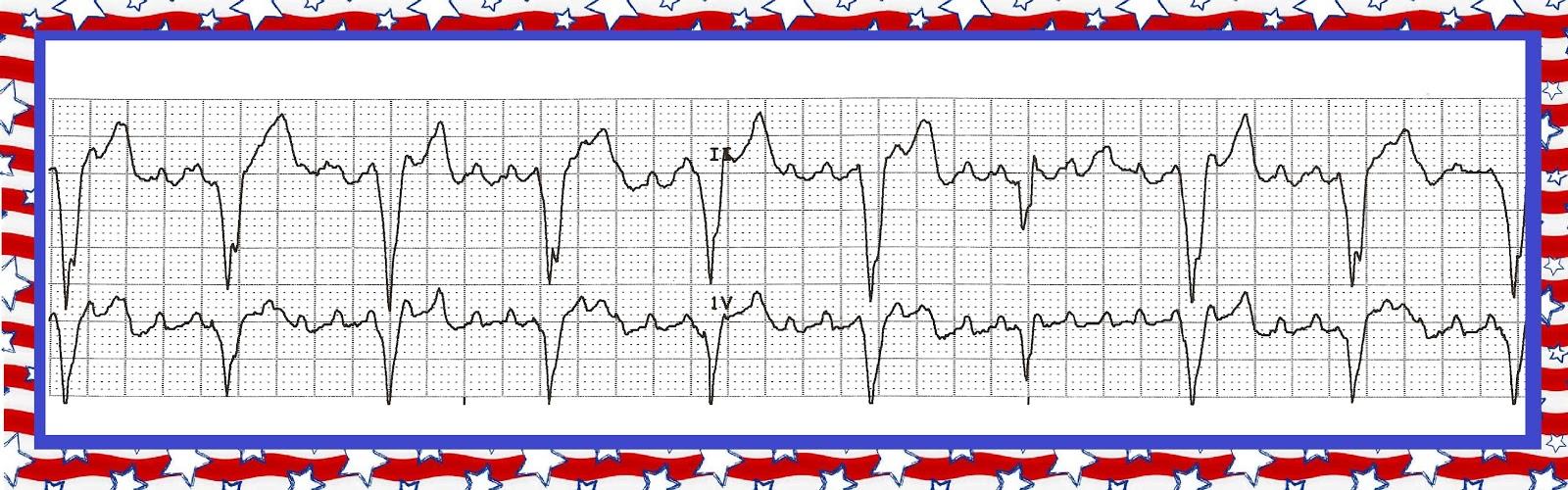 nursing care plan sinus tachycardia Ventricular tachycardia on cardiovascular and stroke nursing polymorphic ventricular tachycardia it is actually sinus rhythm with premature.