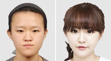 15 Foto 'Before - After' Hasil Operasi Plastik yang Menakjubkan