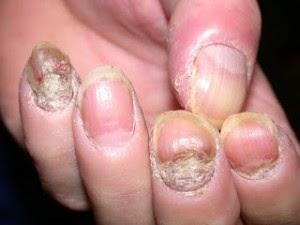 Como quitar la reincidencia atopicheskogo de la dermatitis