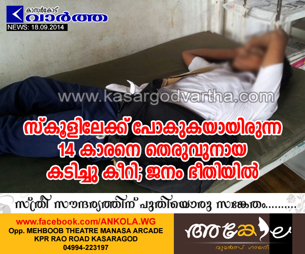 Kasaragod, Kerala, Dog, Dog bite, Student, hospital, Natives, chattanchal, Stray dog bites student in Chattanchal town public in panic situation