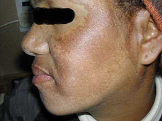 melasma, pigmentasi, melasma, jeragat muka, cara-cara menghilangkan jeragat, melasma treatment, melasma skin, pigmentation problem, the best melasma treatment, the best pigmentation treatment, rawatan jeragat, masalah jeragat, tips hilangkan jeragat, hilangkan pigmentasi