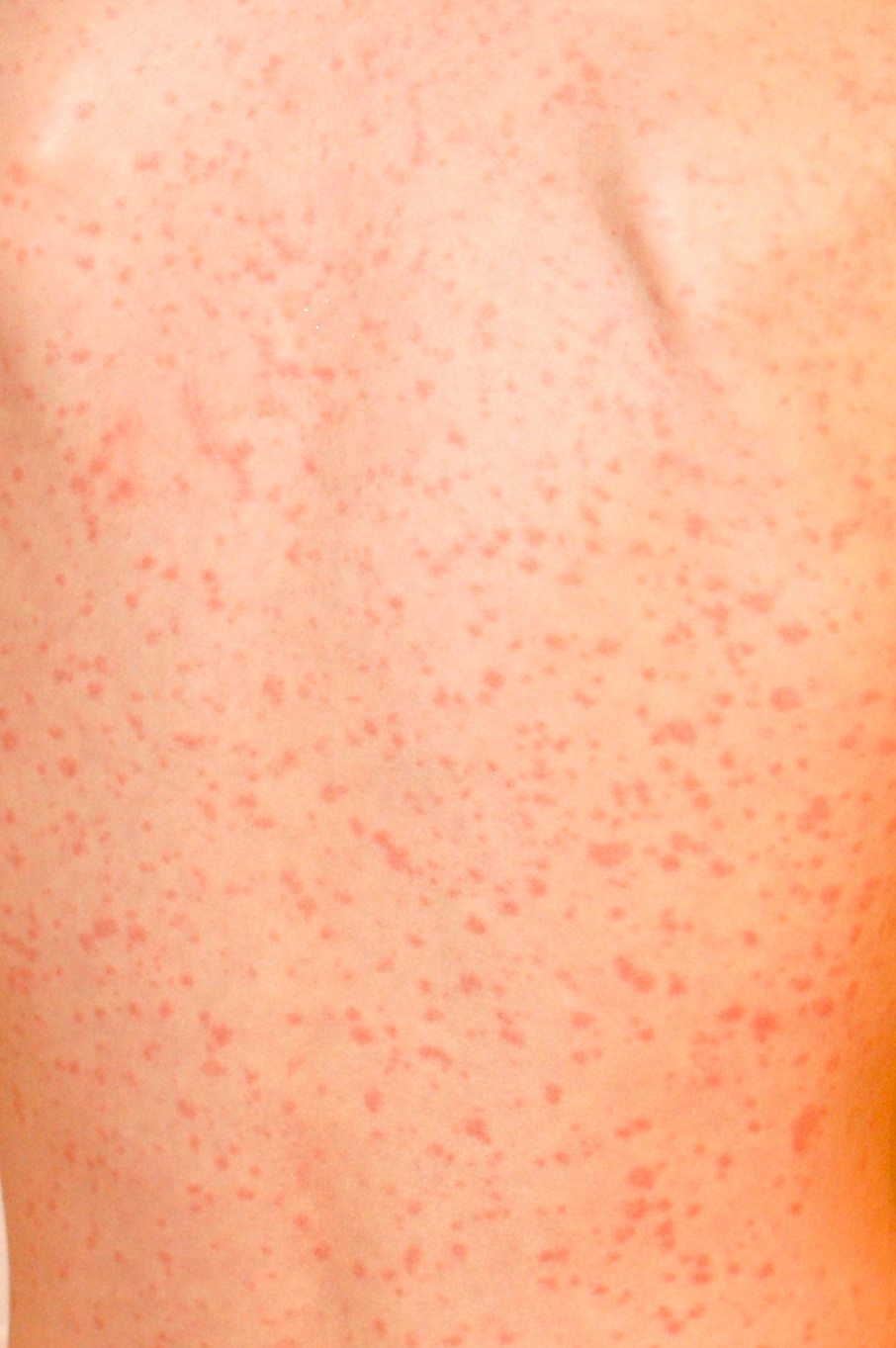 adult symptoms of measles