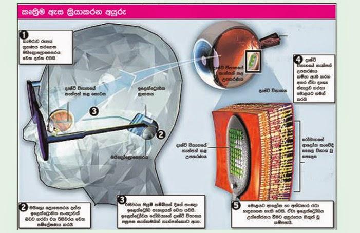 eye surgery and technology
