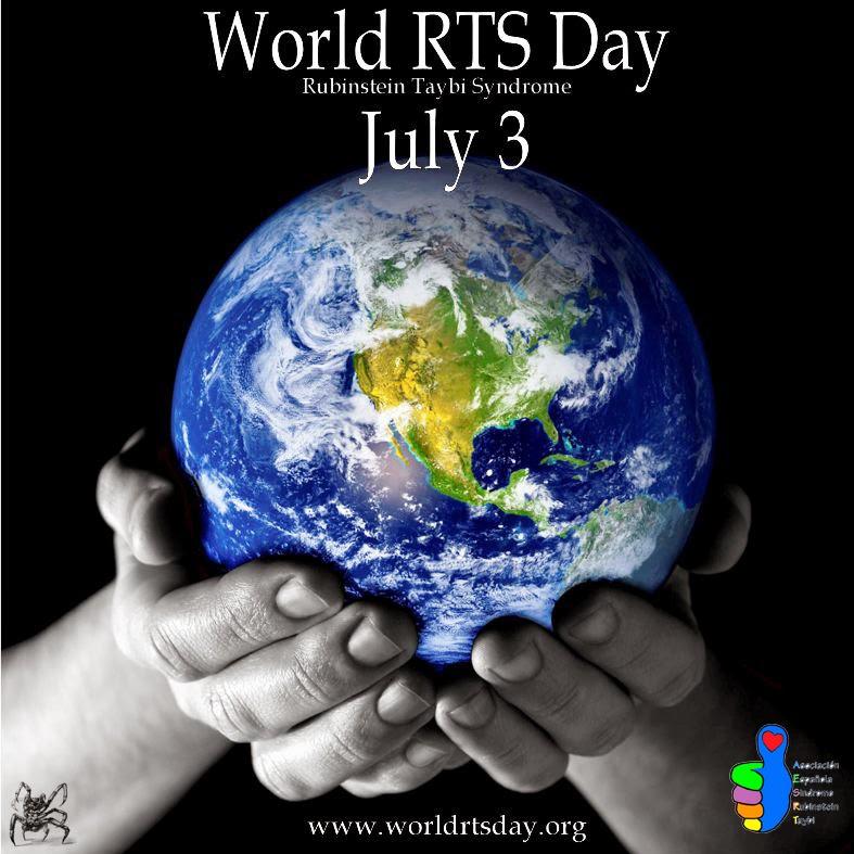 El 3 de julio es el día internacional del Síndrome de Rubinstein-Taybi