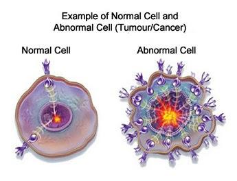 sel kanker atau tumor