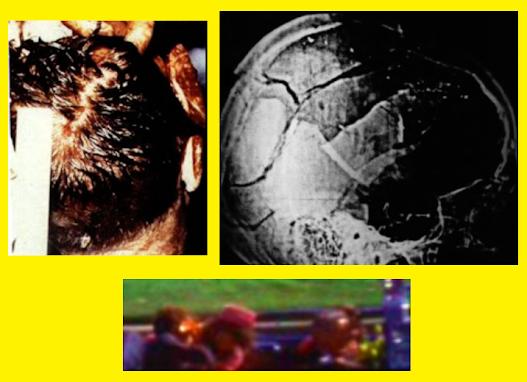 JFK-Head-Wound-Photographic-Comparison.png