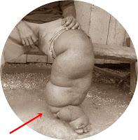 Ciri Penderita kaki gajah