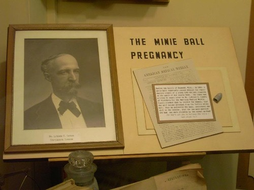 minie ball pregnancy Political, social and historical interpretation at its best wednesday, march 26, 2014 the mysterious minie ball pregnancy.