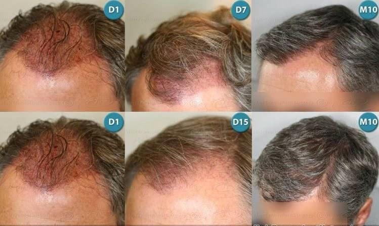 Combien de temps repousse les cheveux homme