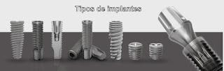implante titanium