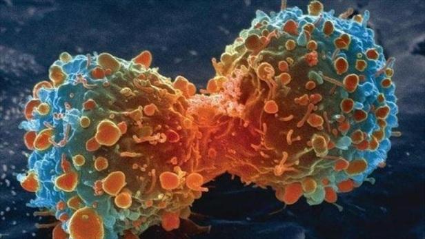 "Células cancerígenas sobreviven al estrés por ""interruptor"" común"